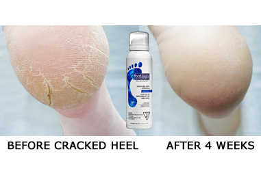 Cracked-Heel-381-by-253